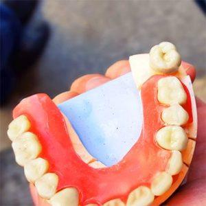 Если нужно выбрать зубные протезы